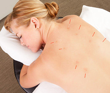 Acupuncture Treatments at Neo Therapy in Harley Street